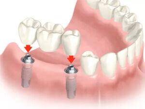 Schema: Behandlung Zahnimplantate